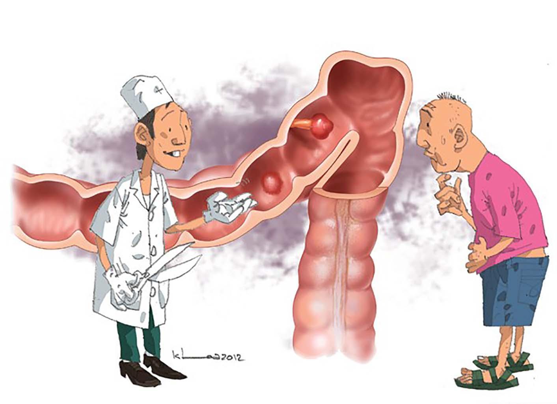 Chế độ ăn trong các bệnh lý đại tràng
